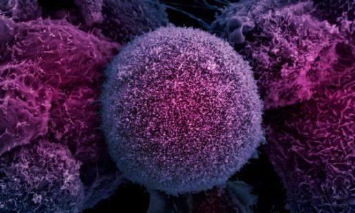 διάγνωση του καρκίνου του προστάτη