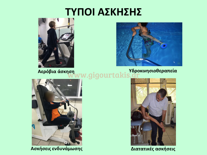 Επίδραση της Άσκησης στο Λεμφικό Σύστημα σε ογκολογικό ασθενή