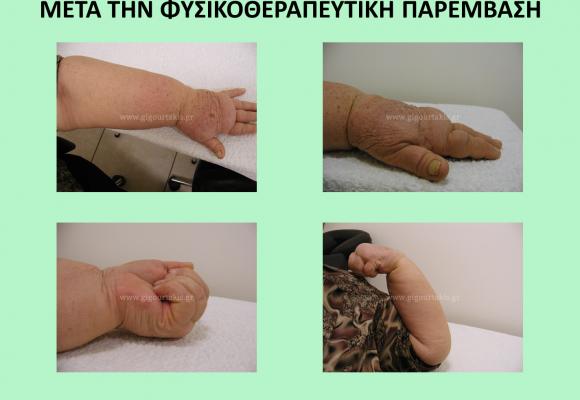 Φυσικοθεραπευτική Παρέμβαση σε Μετατραυματικό και Μετεγχειρητικό Οίδημα. Complete Decongestive Therapy (CDT)